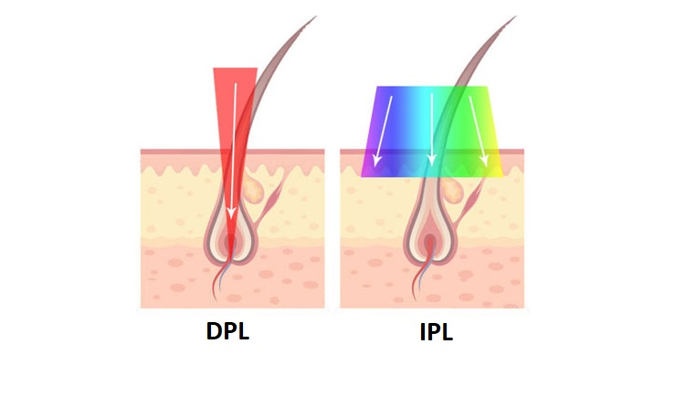 DPL vs. IPL