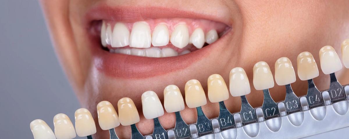 feiten over tanden bleken